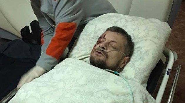 Служба безопасности Украины обвинила сотрудника ГенштабаРФ ворганизации теракта вКиеве