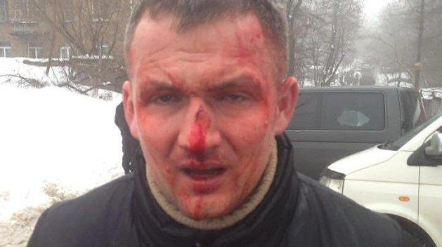 «Наемники Кличко» избили депутата Верховной Рады от ультраправой «Свободы»